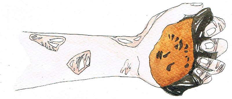 Chaga Mushroom and Psoriasis